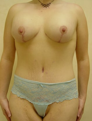 Breast Lift 13 Patient After