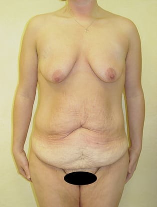 Breast Lift 13 Patient Before