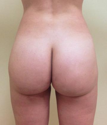 Brazilian Butt Lift 14 Patient After