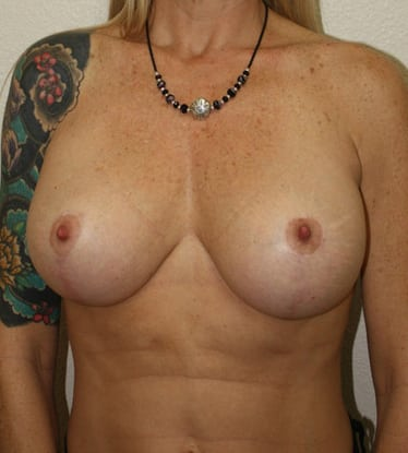 Breast Lift 14 Patient After