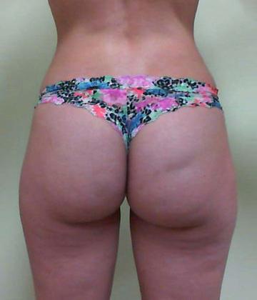 Brazilian Butt Lift 14 Patient Before