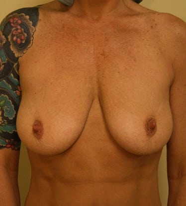 Breast Lift 14 Patient Before