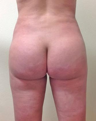 Brazilian Butt Lift 15 Patient After