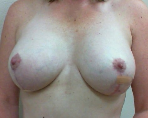 Breast Lift 15 Patient After