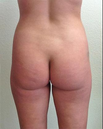 Brazilian Butt Lift 15 Patient Before