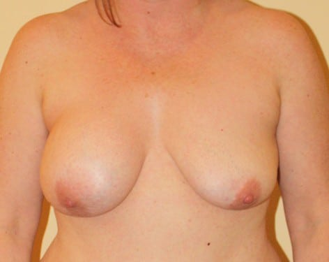 Breast Lift 15 Patient Before