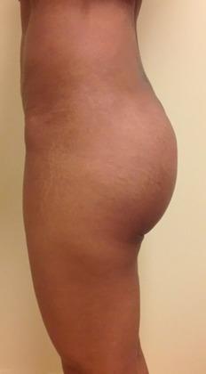 Brazilian Butt Lift 16 Patient After