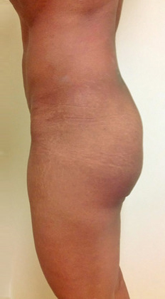 Brazilian Butt Lift 16 Patient Before