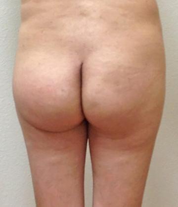 Brazilian Butt Lift 17 Patient After