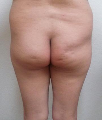 Brazilian Butt Lift 17 Patient Before