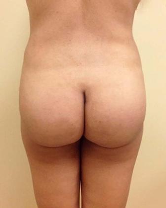 Brazilian Butt Lift 18 Patient After