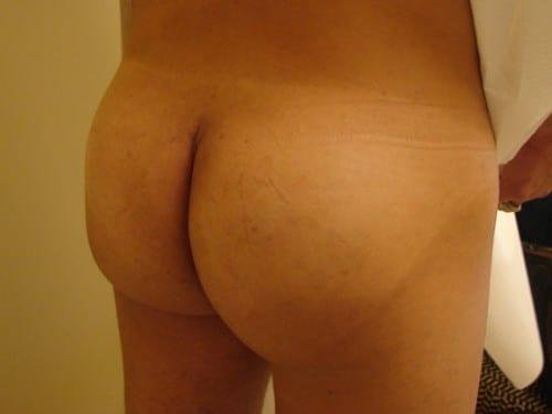 Brazilian Butt Lift 02 Patient After
