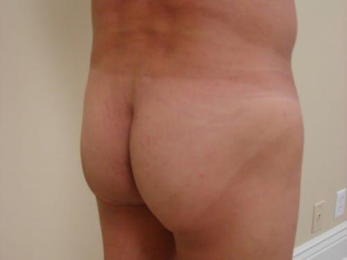 Brazilian Butt Lift 02 Patient Before
