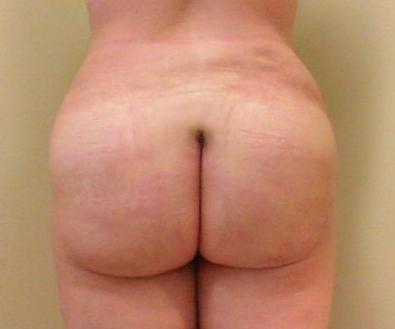 Brazilian Butt Lift 03 Patient After