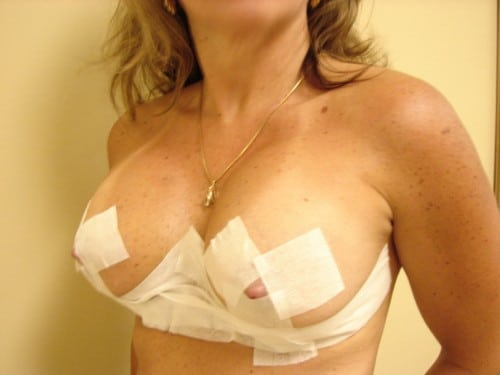 Breast Lift 03 Patient After