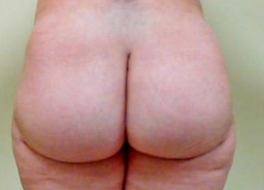 Brazilian Butt Lift 04 Patient After