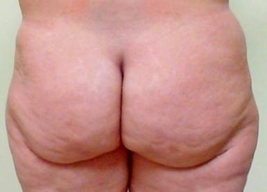 Brazilian Butt Lift 04 Patient Before