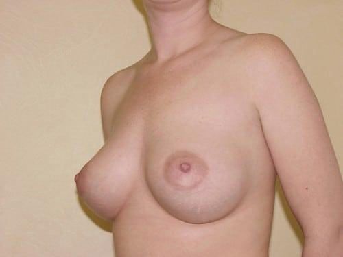 Breast Implants 05 Patient After