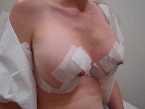 Breast Lift 05 Patient After