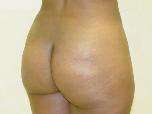 Brazilian Butt Lift 06 Patient After