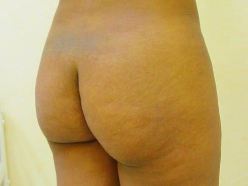 Brazilian Butt Lift 06 Patient Before