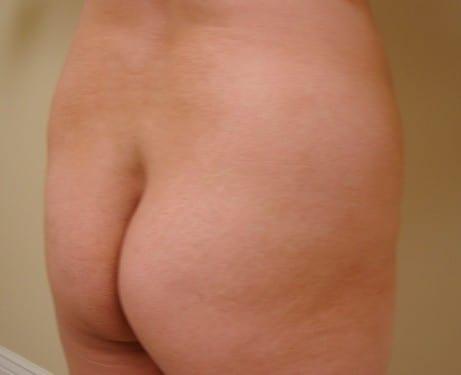 Brazilian Butt Lift 07 Patient Before