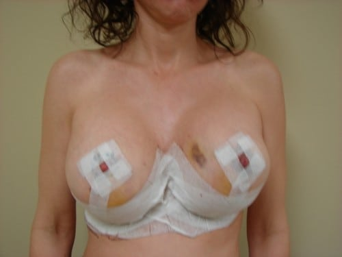 Breast Lift 08 Patient After