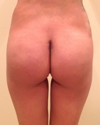 Brazilian Butt Lift 09 Patient After