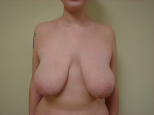 Breast Lift 09 Patient Before