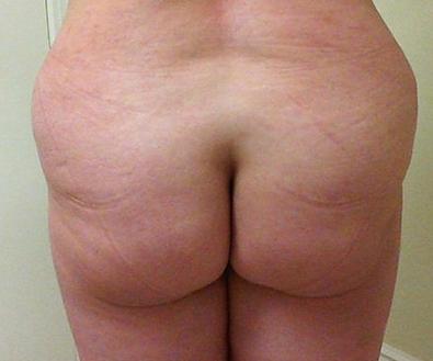 Brazilian Butt Lift 03 Patient Before
