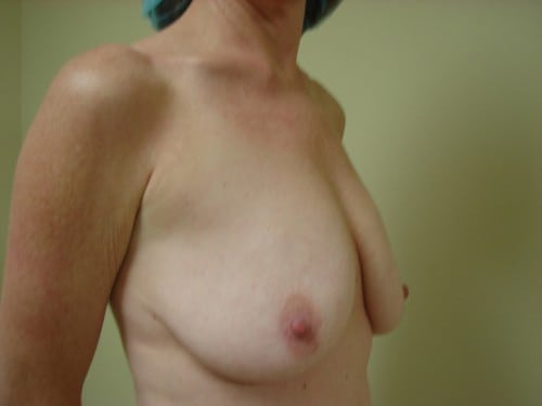 Breast Lift 06 Patient Before
