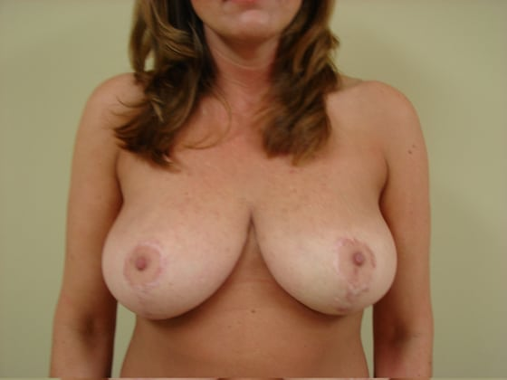 Breast Reduction in San Francisco Patient After 2