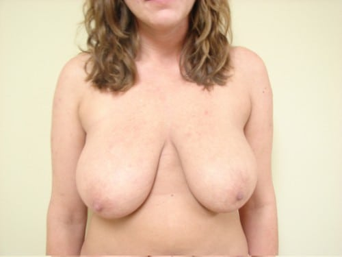 Breast Reduction 01 Patient Before