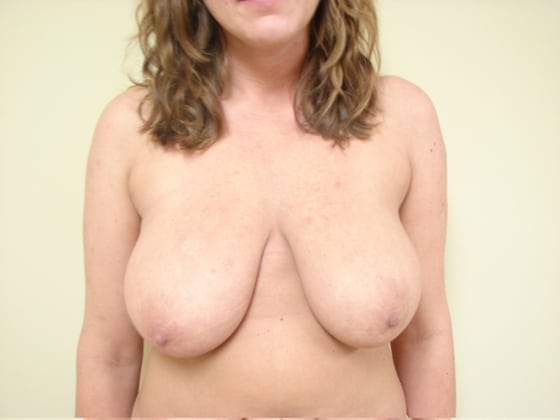 Breast Reduction in San Francisco Patient Before 1