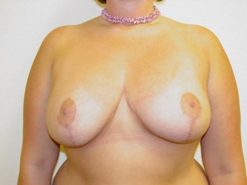 Breast Reduction 10 Patient After