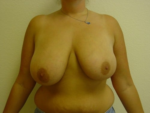 Breast Reduction 10 Patient Before