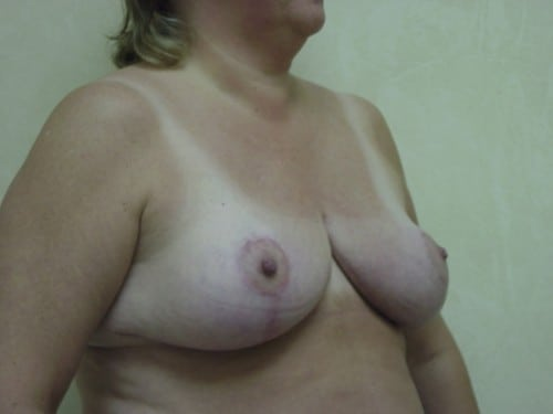 Breast Reduction 11 Patient After
