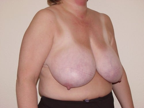 Breast Reduction 11 Patient Before