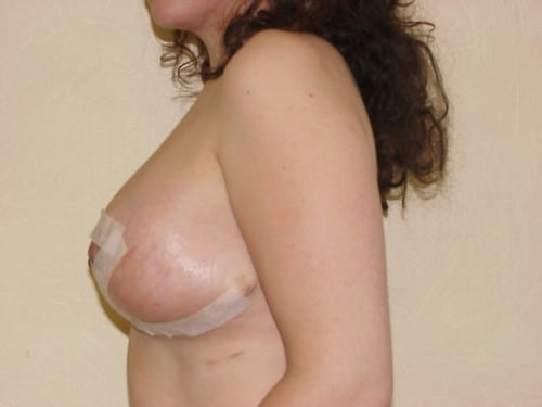 Breast Reduction 12 Patient After
