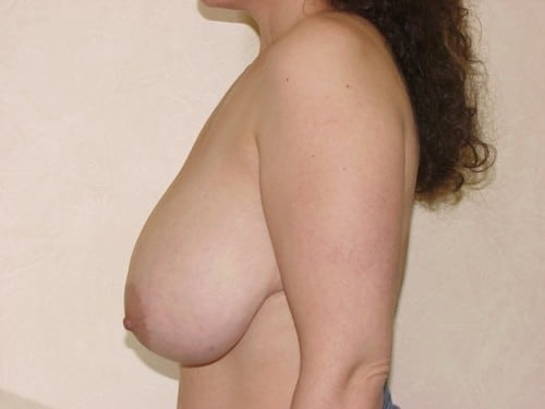 Breast Reduction 12 Patient Before