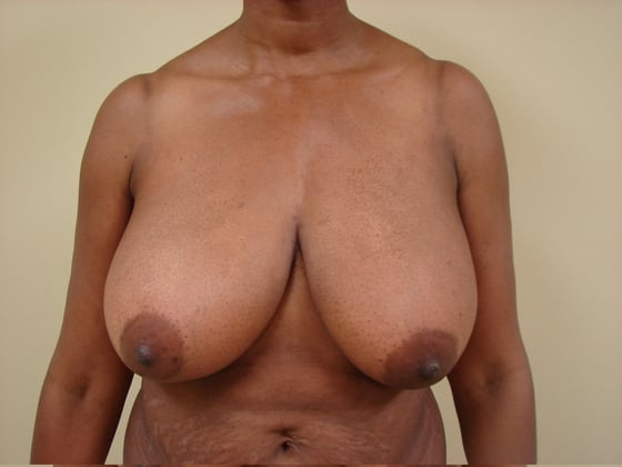 Breast Reduction in San Francisco Patient Before 3