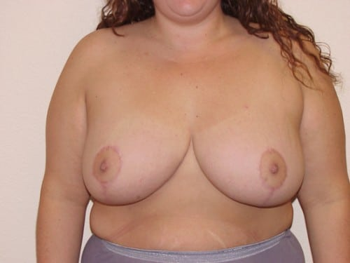 Breast Reduction 03 Patient After
