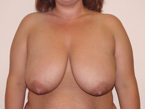 Breast Reduction 03 Patient Before