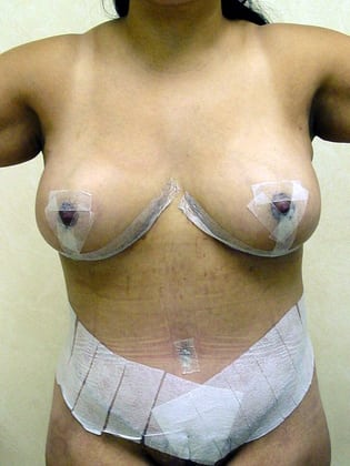 Breast Reduction 04 Patient After