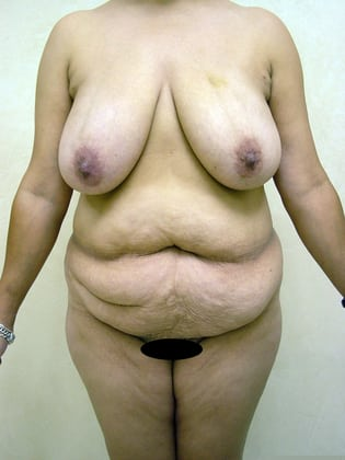 Breast Reduction 04 Patient Before