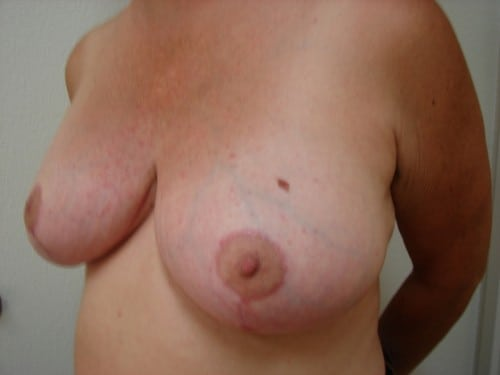 Breast Reduction 05 Patient After