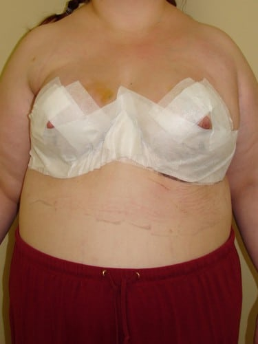 Breast Reduction 06 Patient After