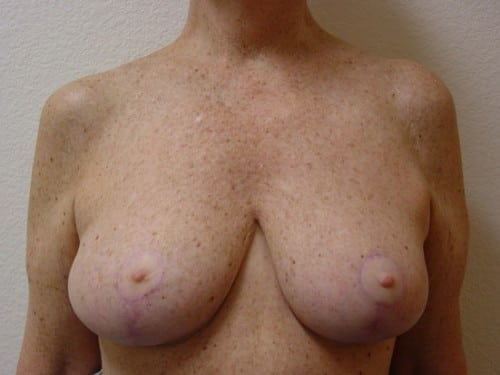 Breast Reduction 07 Patient After