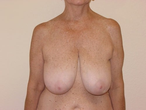 Breast Reduction 07 Patient Before