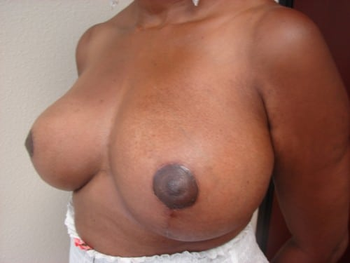 Breast Reduction 08 Patient After